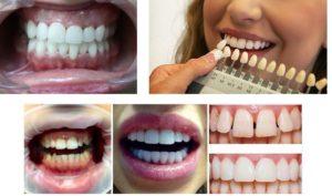 ставят виниры на зубы в стоматологии