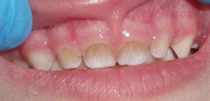 Как лечится черный налет на зубах