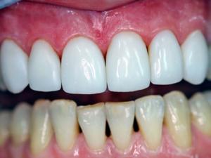 эффективно укрепить эмаль зубов