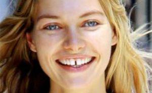 Как можно убрать щель между передними зубами в домашних условиях