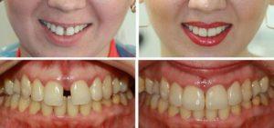 убрать щель между передними зубами в домашних условиях