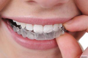 Как можно убрать щель между передними зубами