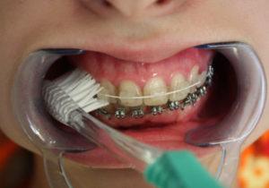 Как проводится чистка зубов с брекетами