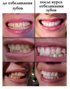 Как проводится отбеливание зубов