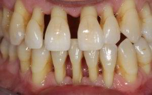 Как проводится протезирование зубов при пародонтозе