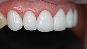 Как проводится реставрационное отбеливание зубов