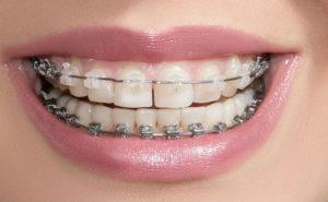 брекеты лучше ставить на зубы
