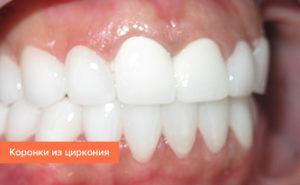 накладки на зубы вместо коронок