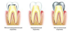 разновидности коронок на зубы