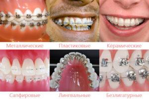 Какие бывают виды брекетов на зубы