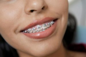 виды брекетов на зубы