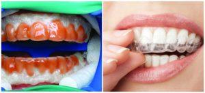 плюсы и минусы лазерного отбеливания зубов