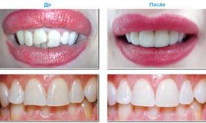 можно поставить на передние зубы