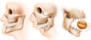 Стоматологические осложнения