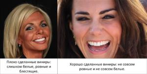 виниры на кривые зубы, и возможные последствия