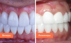 Можно ли ставить виниры на кривые зубы, и возможные последствия