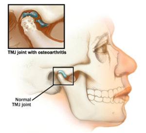 Почему болит челюсть возле уха справа