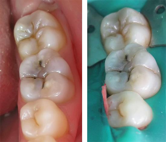 болят зубы после отбеливания zoom
