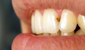 Почему появляется кариес между зубами и лечение
