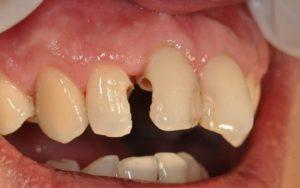 Почему появляется кариес между зубами