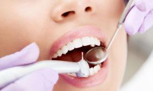 Почему появляется кариес на зубе мудрости и как он лечится