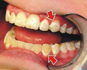 коричневый налет на зубах и способы избавления от него