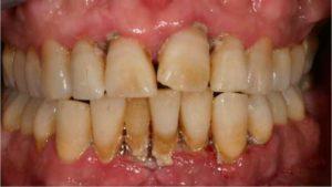 появляется налет на зубах и способы избавления от него