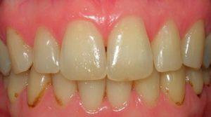 Почему появляются черные пятна на зубах