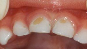 Что вызывает появление черных пятен на зубах