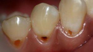 черные пятна на зубах