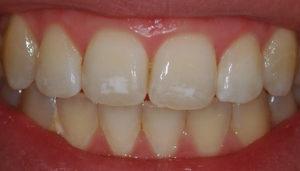 Почему появляются черные точки на зубах и способы избавления от них