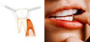 Почему шатаются зубы и способы их укрепления