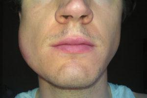 Что делать, если зуб не болит, но щека опухла