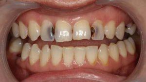 Почему зуб ноет после пломбирования