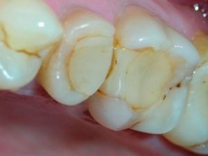 зуб ноет после пломбирования и как это лечить