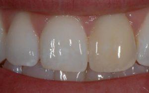 Почему зуб реагирует на сладкое