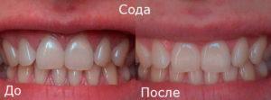 Процесс отбеливания зубов содой