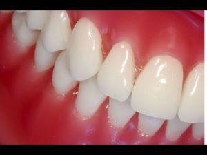 Рецепты для укрепления десен и шатающихся зубов народными средствами