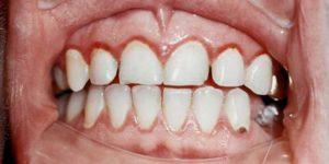 Симптомы и лечение атрофического гингивита