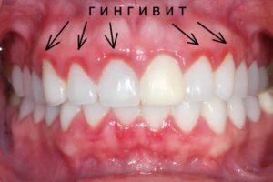 лечение атрофического гингивита