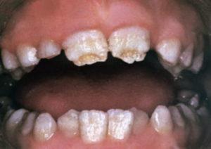 Симптомы и лечение гипоплазии зубов