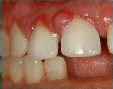 Гранулема зуба : лечение в клинике и народными средствами 63