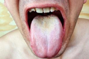 Симптомы и лечение грибкового стоматита