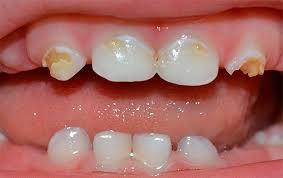 Симптомы и лечение кариеса молочных зубов у детей раннего возраста