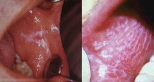 Симптомы и лечение красного плоского лишая