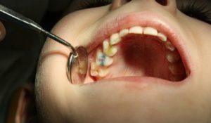 Симптомы и лечение пульпита молочных зубов у детей
