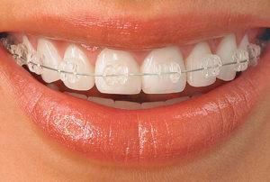 Сколько времени носят брекеты на зубах