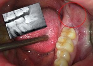 лечить зубы мудрости по мнению стоматологов