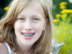 В каком возрасте детям ставят брекеты на зубы