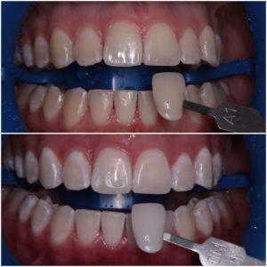 Вредно ли отбеливание зубов для здоровья
